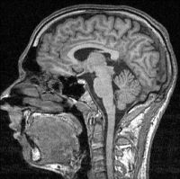 FMRI-scan_sectie_85
